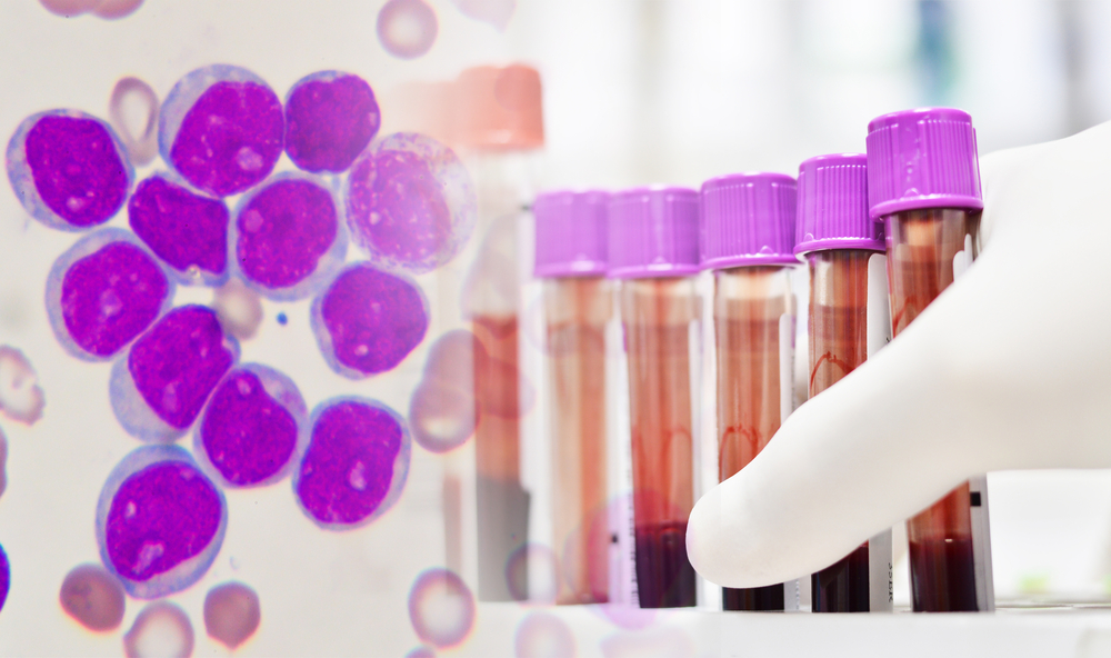 Two Infants Saved From Leukemia By Gene-Editing