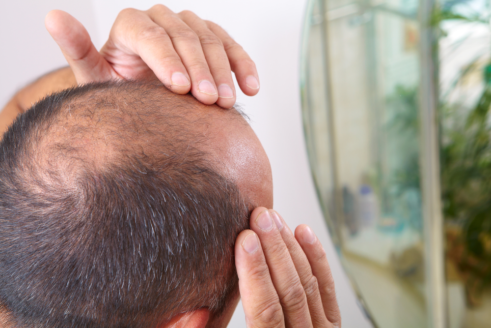 way-316606, a new drug designed to treat osteoporosis can help cure baldness by fighting hair loss and promoting hair growth