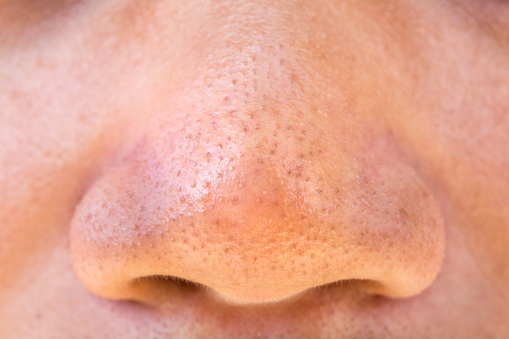 Blackheads removal method for fresh soft skin