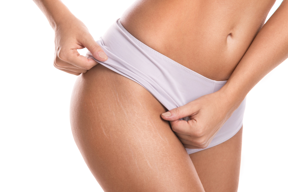 natural ways to remove stretch marks and promote healthy skin